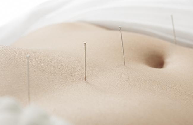 La acupuntura como remedio para mejorar la fertilidad