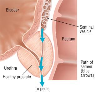 ¿Puede una próstata agrandada no eyacular?