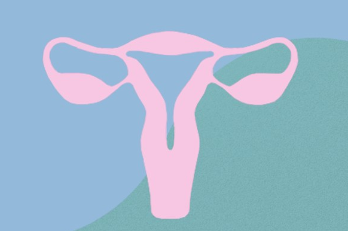 Endometriosis: entender una infertilidad inexplicable